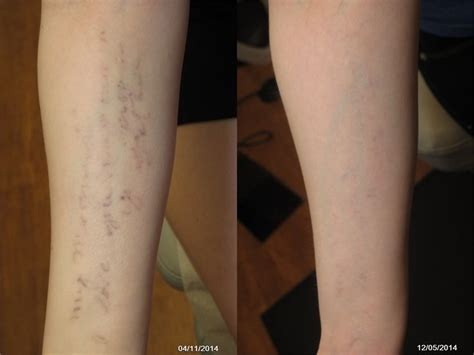 latest laser tattoo removal technology 72 best laser treatments images on laser
