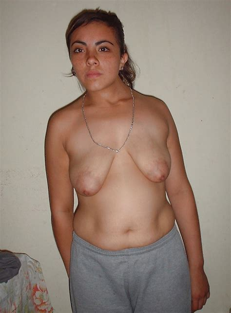 Nude Moms With Stretch Marks Thepicsaholic Com