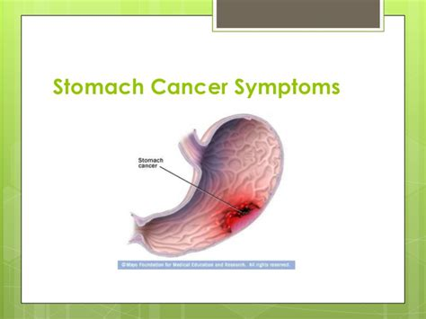 symptoms of stomach cancer in dogs stomach cancer symptoms