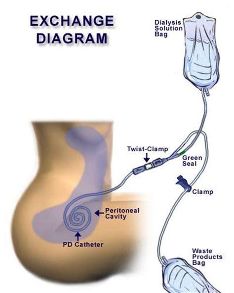 Alat Cuci Darah Capd frasier labarbera peritoneal dialysis