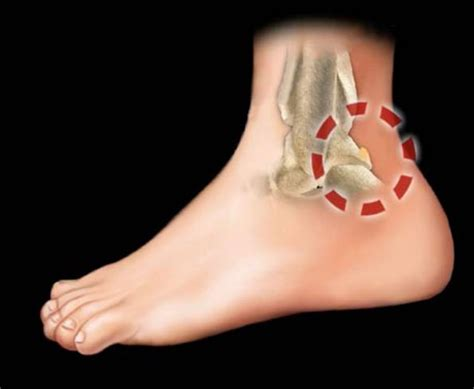 dolore alla caviglia lato interno sindromi da impingment dolore della caviglia