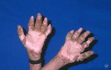Can You Get Planters Warts On Your Fingers warts american academy of dermatology