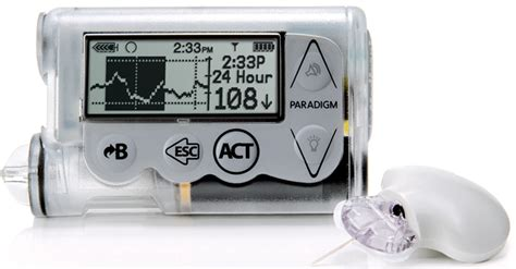 insulin pumps and continuous glucose monitoring books insulin pumps and continuous glucose monitoring the loop