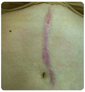 c section scar tissue pain years later fascia sidekudos scar tissue release bliss clinic