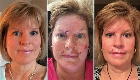 shares skin cancer photos to show effects of tanning