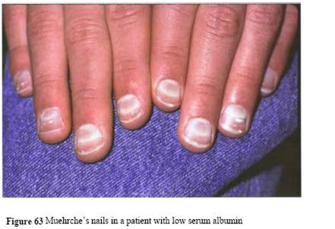 White Nail Beds by White Fingernails And Liver Disease Awesome Nail