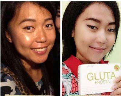 Gluta Frosta Plus Malaysia cik bebeq shop gluta frosta plus jb sg delivery