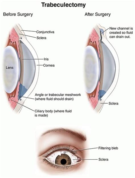 best glaucoma treatment glaucoma treatment trabeculectomy surgery 183 top nyc eye