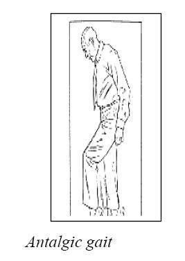 gait pattern types abnormal gait patterns flashcards quizlet