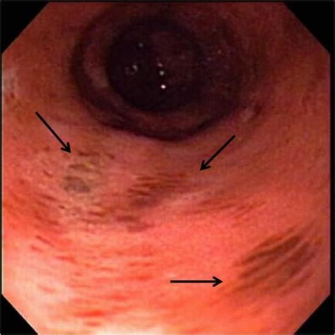 Colitis In Dogs Blood In Stool by Lower Gastrointestinal Endoscopy 187 Small Animal Hospital