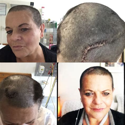 hairstyles for recovering brain surgery 93 best images about post brain surgery hairstyles on