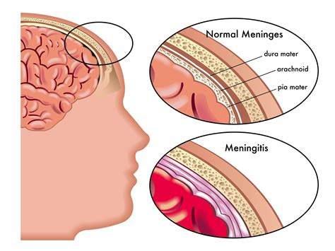 edmodo leak meningitis lessons tes teach
