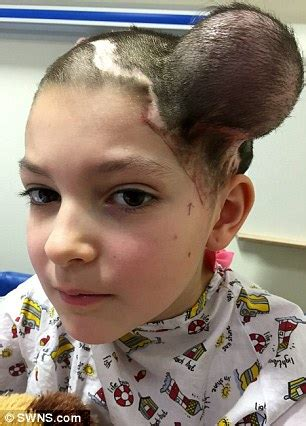 cool hairstyles for 11 year old boy uk 2015 jessica brett undergoes balloon op to stretch her scalp