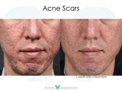 Acne Licuid laser acne scar removal before and after circuit diagram