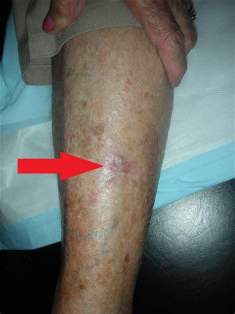 tumors on leg skin cancer on leg images