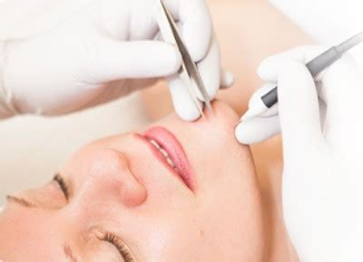 beyond skin care electrolysis hair removal in new jersey