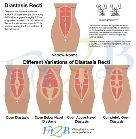 torn stomach muscle after c section diastasis recti exercise programs moms will love these