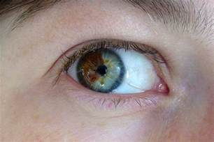 2 different eye colors heterochromia why are different colors a moment of