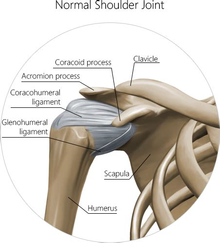 Detox Frozen Shoulder by Frozen Shoulder Treatment In Nyc Nydnrehab
