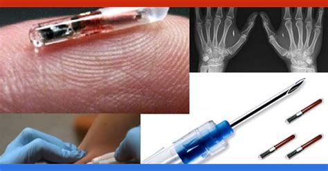 obamacare rfid chip section related keywords suggestions for microchip america 2017