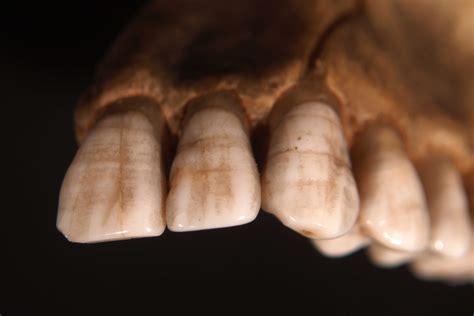 Deficiency Diseases In Plants - dental enamel hypoplasia enamel hypoplasia