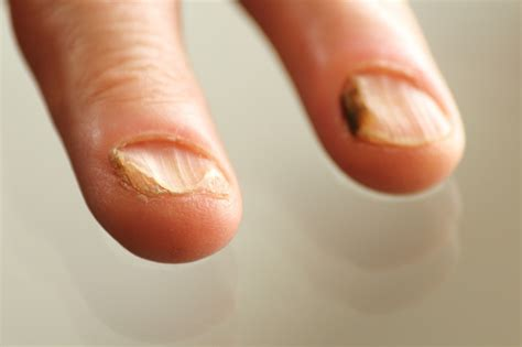 infected nail bed yeast infection in the fingernails