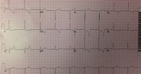 pattern recognition ecg dr smith s ecg blog is this stemi pattern recognition
