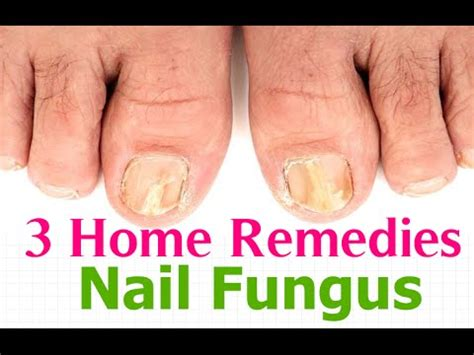 how to remedy yellow toenails doovi