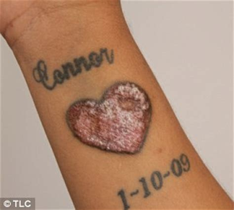 signs of tattoo infection hearts infected with pictures to pin on tattooskid
