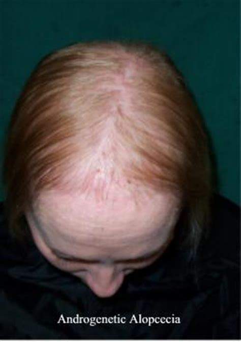 hairstyles for androgenectic alopecia causes of hair loss in women