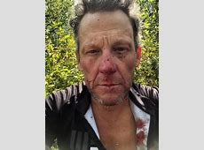 Lance Armstrong hospitalized after bloody bike accident ... Lance Armstrong