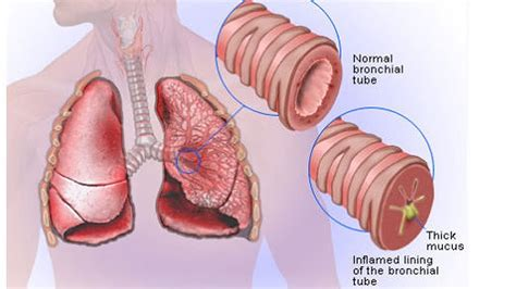 colors of phlegm phlegm mucus color shows the health condition steemit