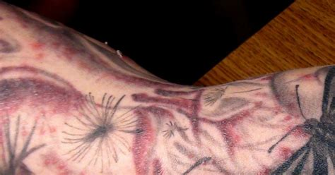 new tattoo care rash distilled water linked to tattoo rashes ny daily news