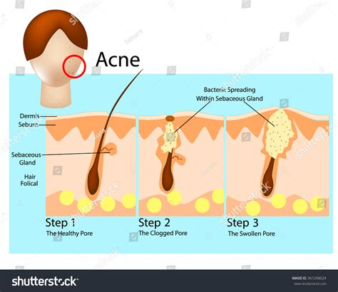 cystic acne diagram how acne develops acne stages formation stock vector