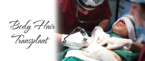 the very best body hair transplant in delhi body hair transplant delhi body hair transplantation cost