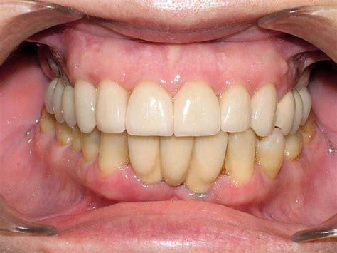 la dinasta del diente 4 motivos por los que los dientes pierden su color y se ponen amarillos