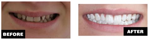 patient case studies invisalign leicester cosmetic