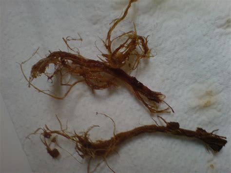 Paleo Detox For Parasites by Parasite Cleanse Diet Goji Benefits