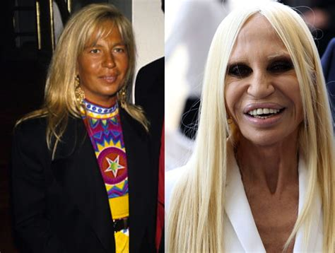 Donatella Versace Tells Clinton To Take by Donatella Versace Bad Plastic Surgery Purple Clover