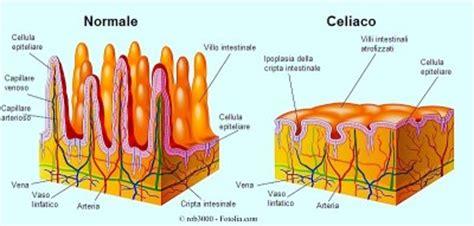 celiachia e mal di testa sintomi della celiachia o intolleranza al glutine esami e