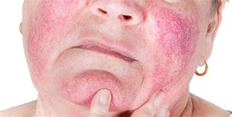 Obat Alami Kulit Wajah Sensitif cara mengatasi kulit wajah sensitif dari jerawat secara