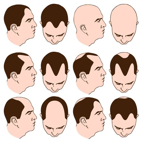 male pattern baldness types does wearing a hat really make you go bald futurederm