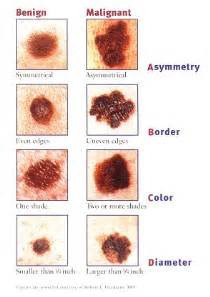 Best Tanning Beds The Signs Of Melanoma Loralitzelman S Blog