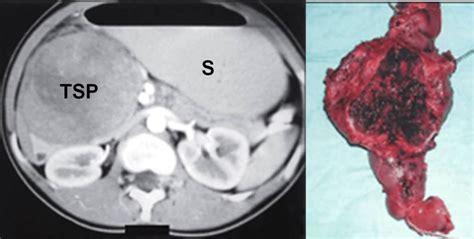 tumore alla testa pancreas cisti pancreas