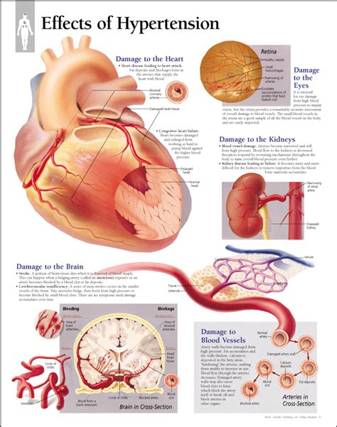 c section due to high blood pressure effects of hypertension paper scientific publishing