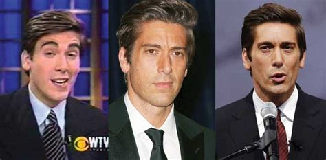 david muir shirtless plastic surgery and pictures this osmond plastic surgery before and after pictures 2018