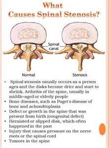 spinal stenosis and d epices on