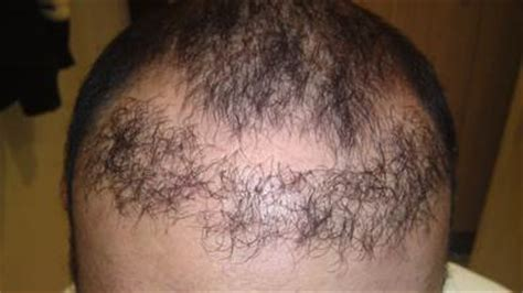 bad hair transplants hair loss hair transplant and hair restoration advice