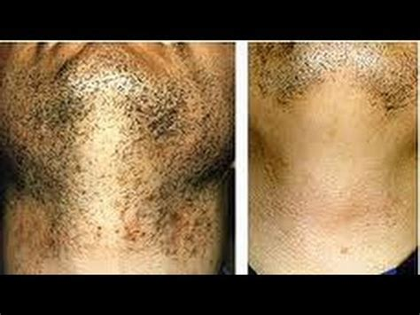 black dots of ingrown hairs on back of thighs how to treat ingrown hairs particulary black skin youtube