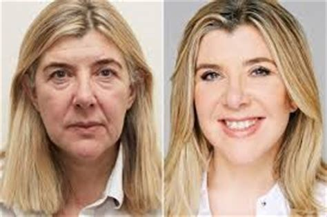 Next Facelift For Your Teeth 2 by 3 Non Invasive Surgical Procedures